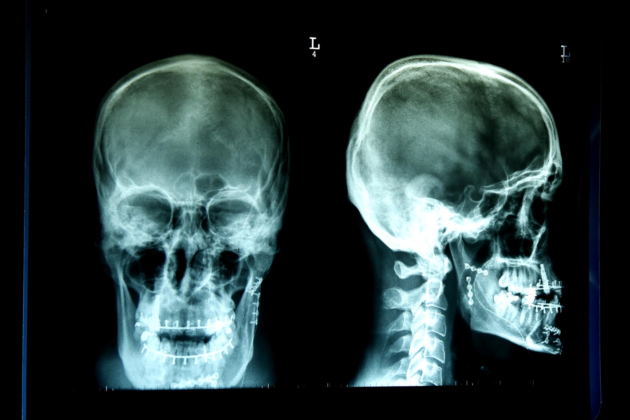 Radiologietechnologie_RT_56